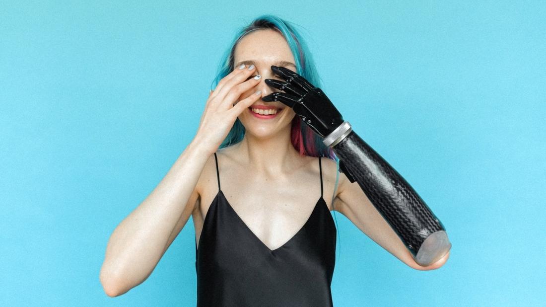 Frau mit Armprothese