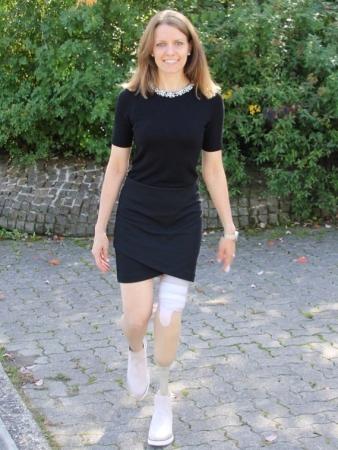 Unterschenkelprothese mit Kleid