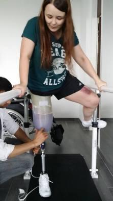 Anwenderin mit Beinprothese