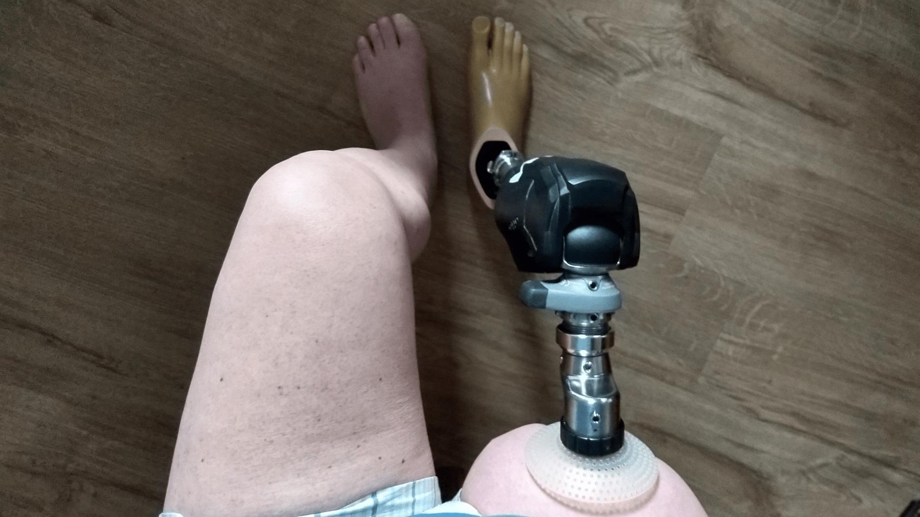 Endo-Exo Prothesenversorgung