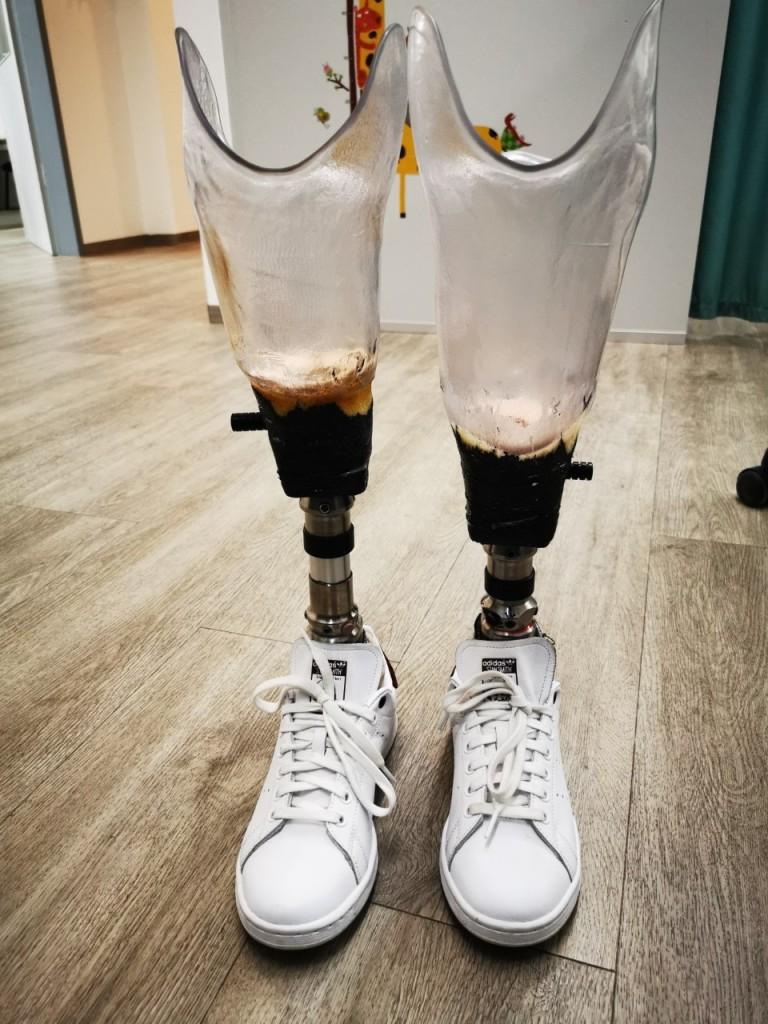 2 Beinprothesen in der Interimsphase der Prothesenanpassung-  Perspektivenwechsel mit Prothesen