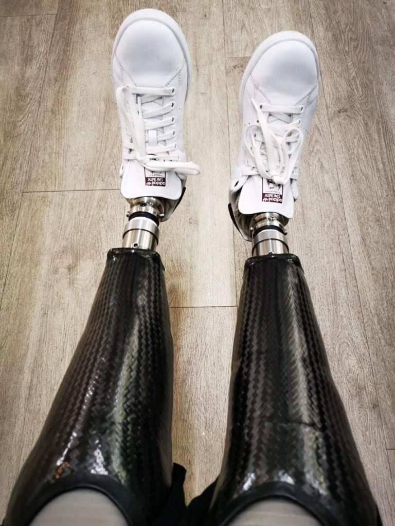 2 Beinprothesen als Definitivversorgung - Perspektivenwechsel mit Prothesen